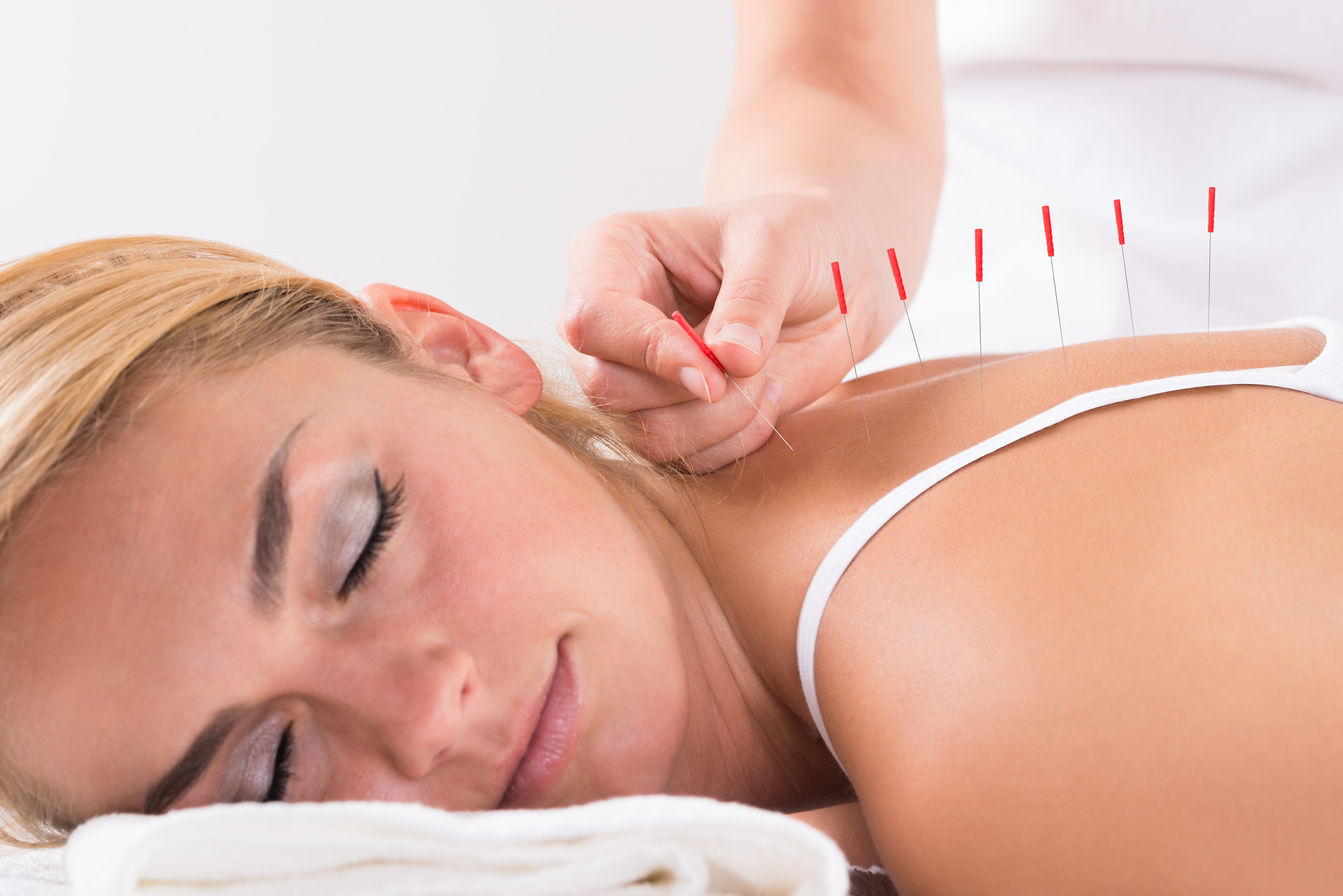 foto di paziente durante agopuntura per fertilità