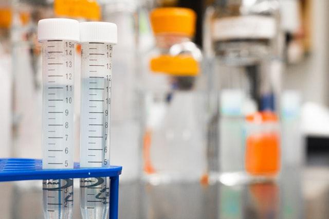 foto di laboratorio che indica come si fa la spermiocoltura