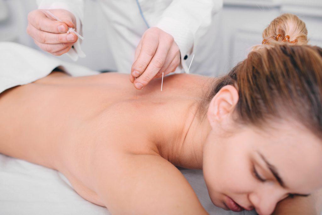 Agopuntura e infertilità