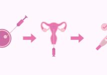 Illustrazione della fecondazione in vitro ICSI presso Centro Demtra